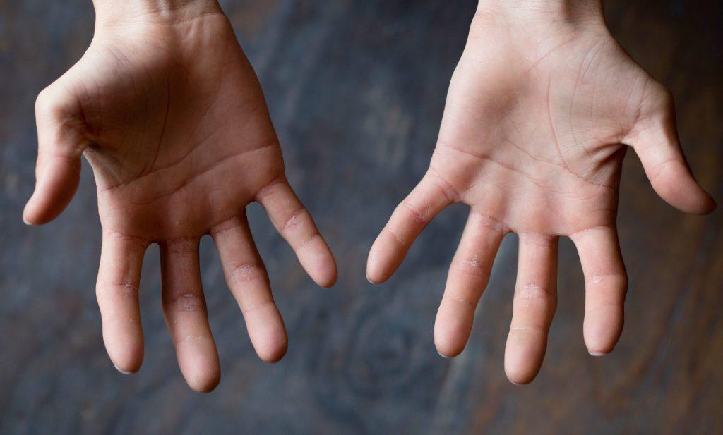 クライマーにおすすめの指皮ケア方法とは?